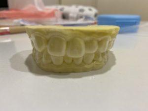 歯型を取る